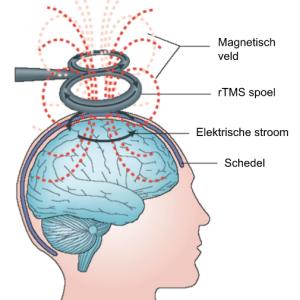 rTMS behandeling bijdepressie
